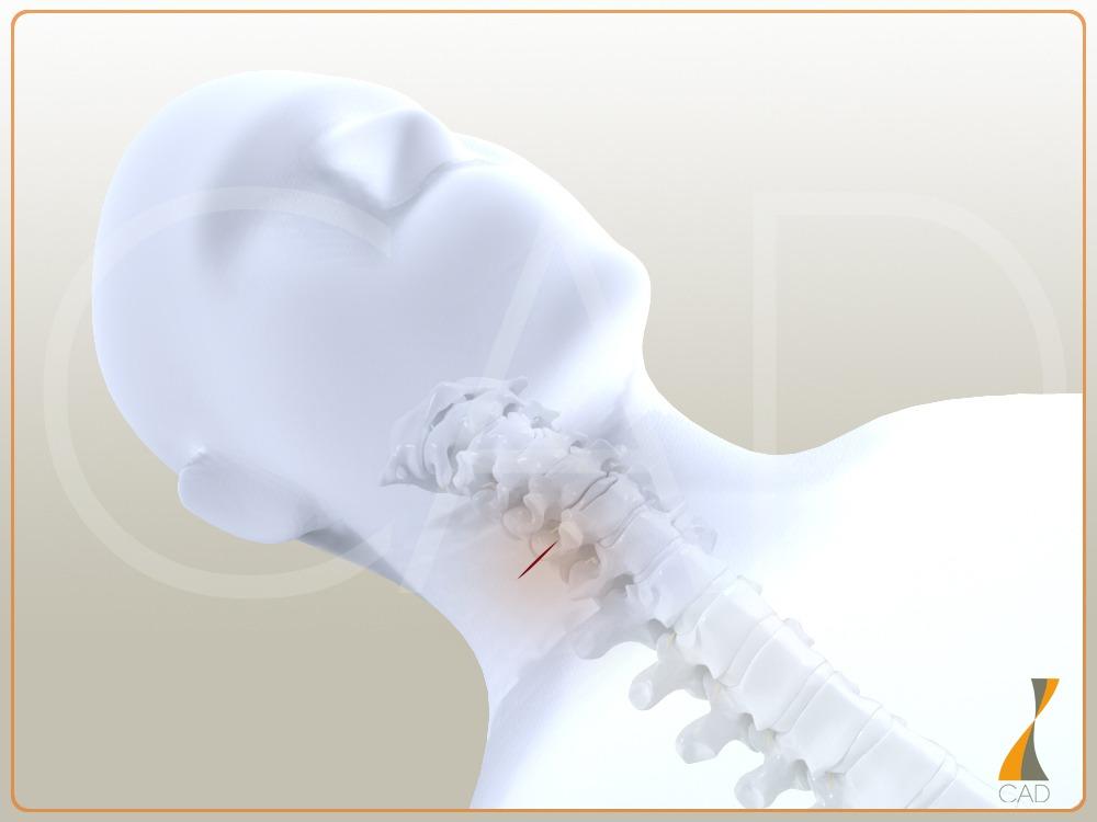 hernie_cervicale_incision_cou_synthes3d_V4_10