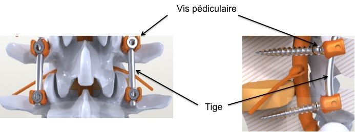 Chirurgie de la scoliose de l'adolescent1